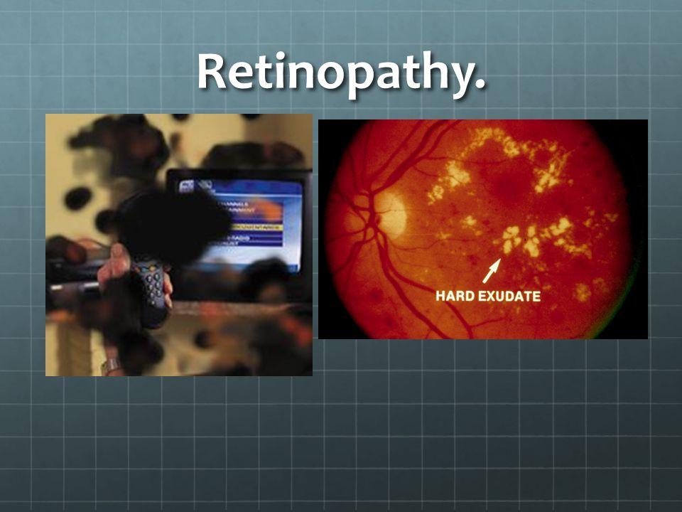 Retinopathy.