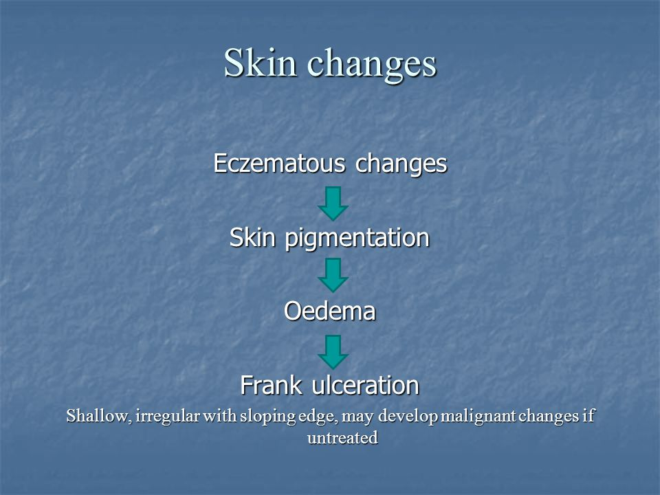 Skin changes Eczematous changes Skin pigmentation Oedema Frank ulceration Shallow, irregular with sloping edge, may develop malignant changes if untre