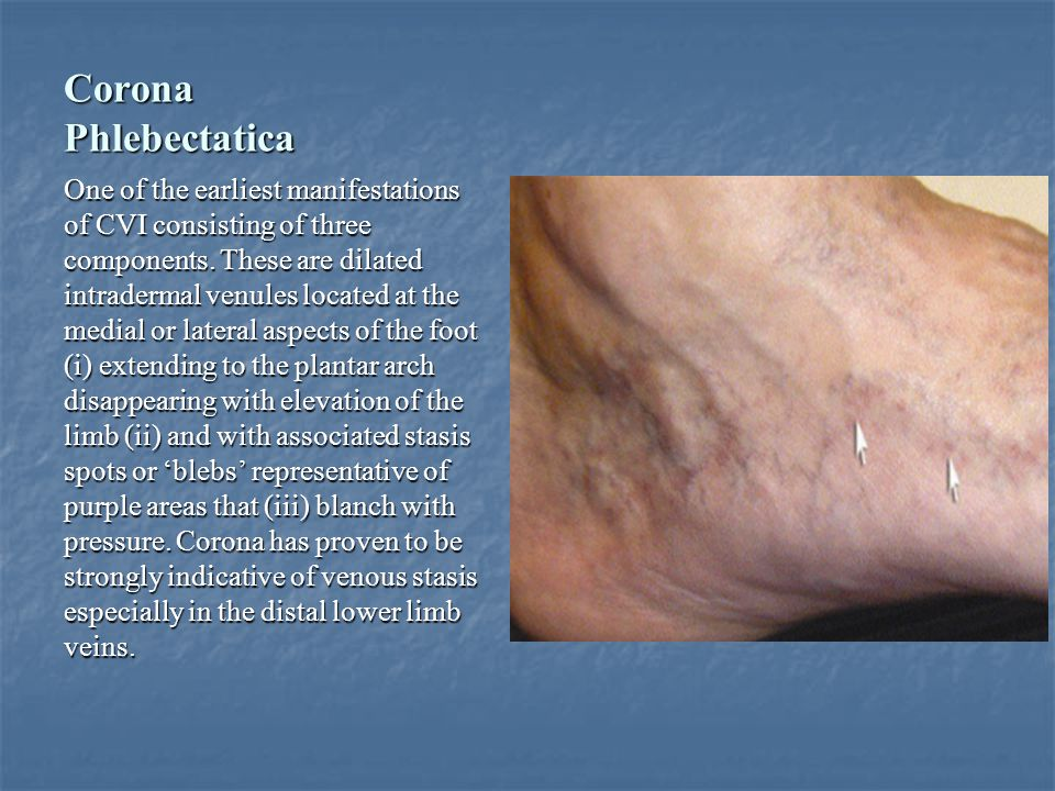 Corona Phlebectatica One of the earliest manifestations of CVI consisting of three components. These are dilated intradermal venules located at the me