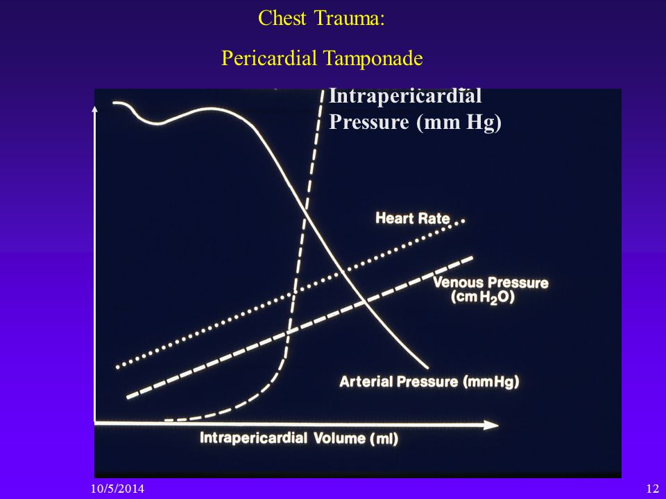 10/5/ Chest Trauma: Pericardial Tamponade Intrapericardial Pressure (mm Hg)