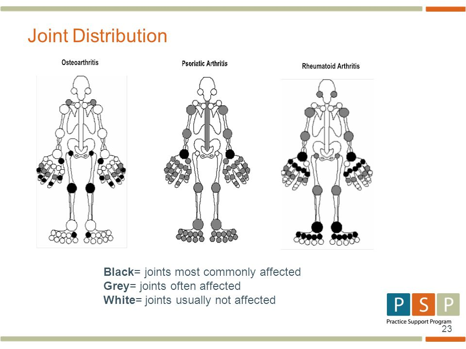 23 Joint Distribution Black= joints most commonly affected Grey= joints often affected White= joints usually not affected