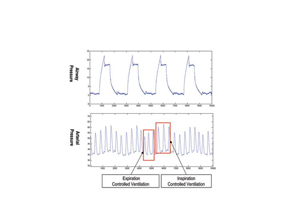 Performance of ΔD IVC Barbier et al.