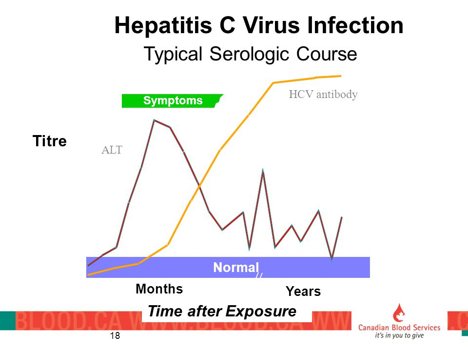 Symptoms anti- HCV ALT Normal 012345 61234 Hepatitis C Virus Infection Typical Serologic Course Titre Months Years Time after Exposure 18 HCV antibody