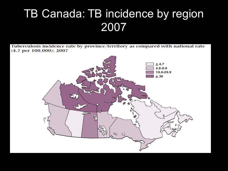 TB Canada: TB incidence by region 2007