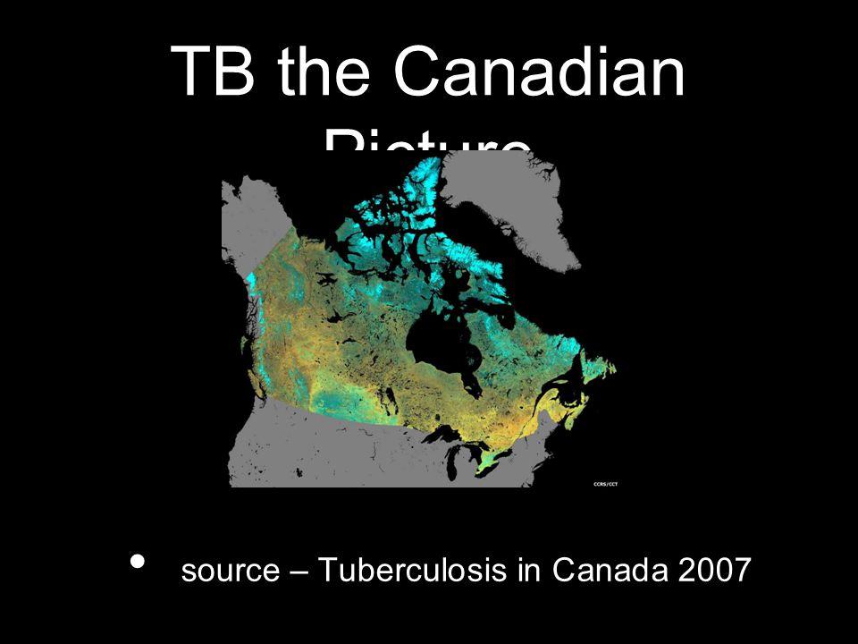 TB Canada: incidence/mortality