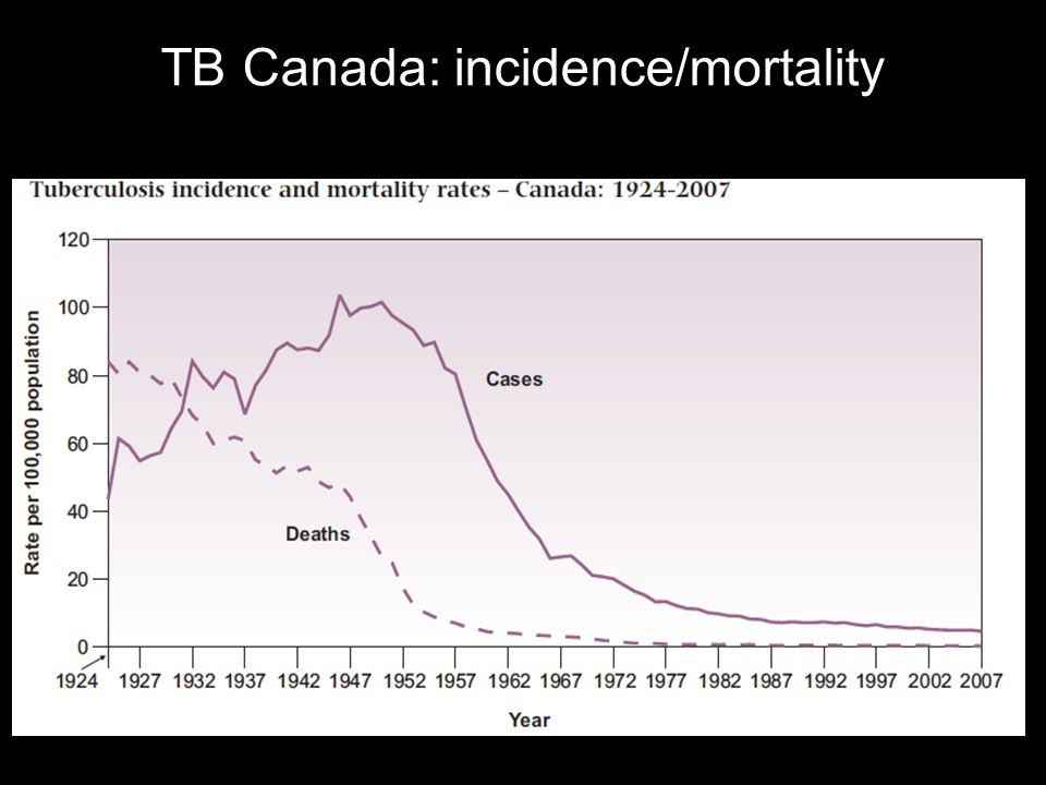 TB Cases by Ethnic Group: Sask Vs Canada Sask Canada