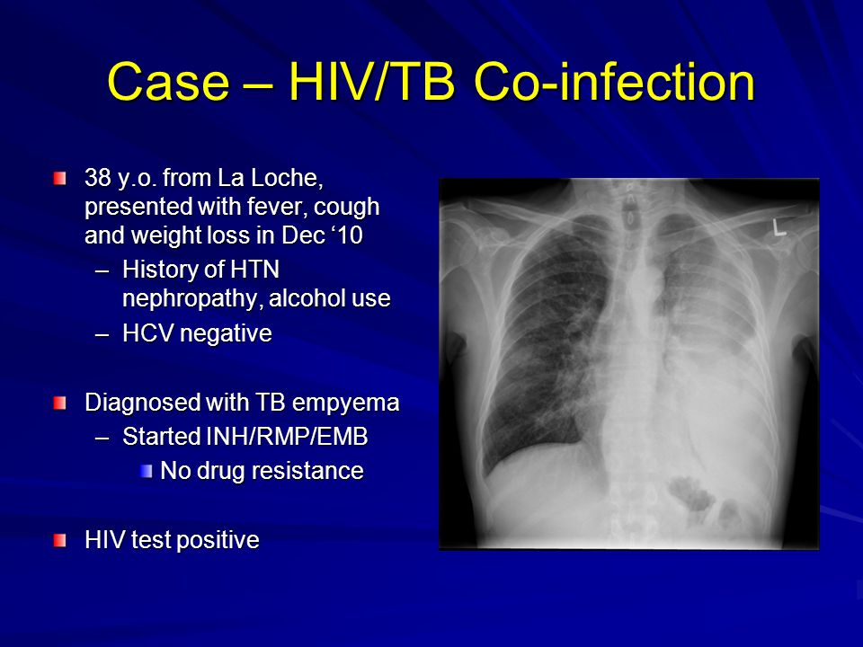 Case – HIV/TB Co-infection 38 y.o. from La Loche, presented with fever, cough and weight loss in Dec '10 –History of HTN nephropathy, alcohol use –HCV