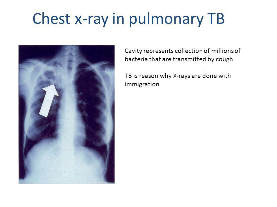 Chest x-ray in pulmonary TB Cavity represents collection of millions of bacteria that are transmitted by cough TB is reason why X-rays are done with immigration