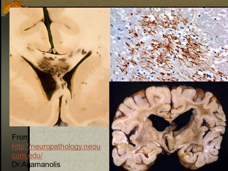From http://neuropathology.neou com.edu/ http://neuropathology.neou com.edu/ Dr.Agamanolis