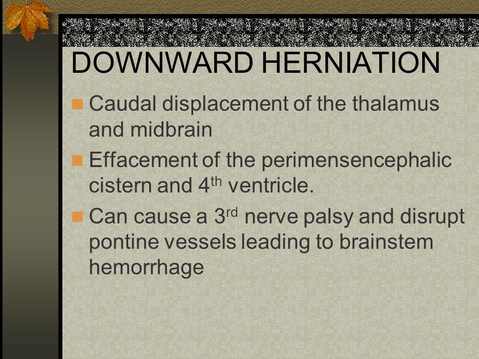DOWNWARD HERNIATION Caudal displacement of the thalamus and midbrain Effacement of the perimensencephalic cistern and 4 th ventricle. Can cause a 3 rd