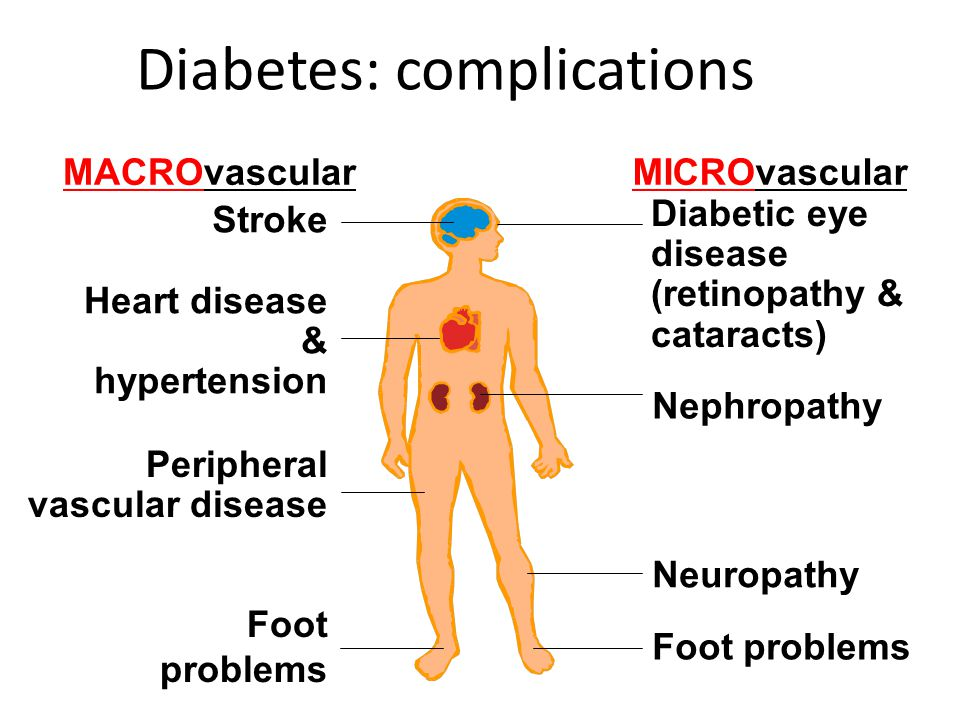 MACROvascularMICROvascular Stroke Heart disease & hypertension Foot problems Diabetic eye disease (retinopathy & cataracts) Nephropathy Neuropathy Foot problems Diabetes: complications Peripheral vascular disease