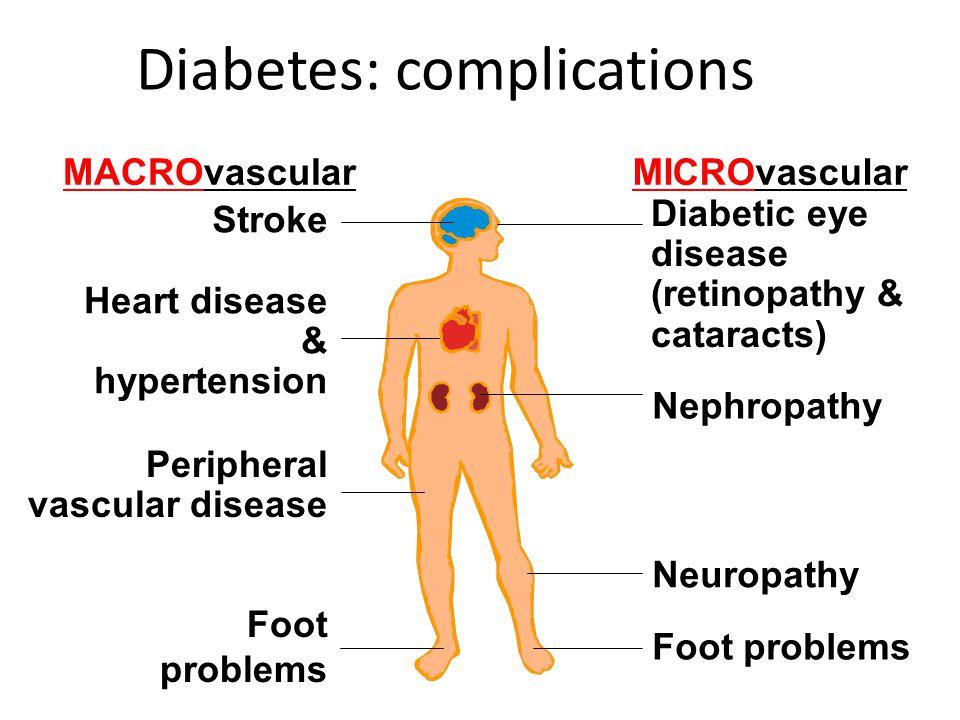 MACROvascularMICROvascular Stroke Heart disease & hypertension Foot problems Diabetic eye disease (retinopathy & cataracts) Nephropathy Neuropathy Foo