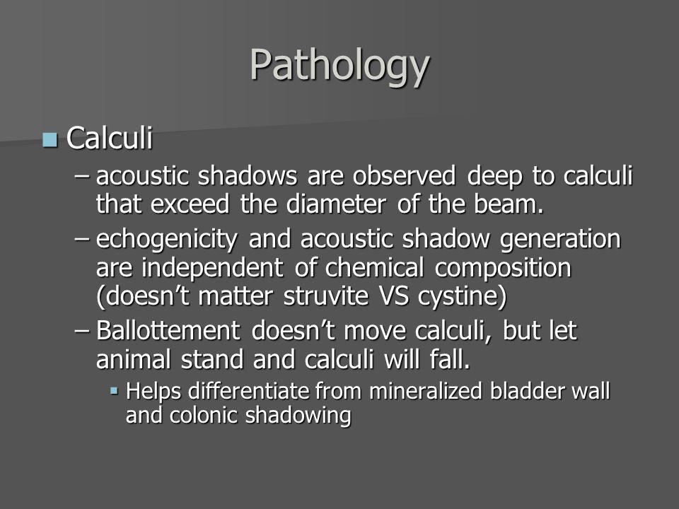 Cystic Calculi