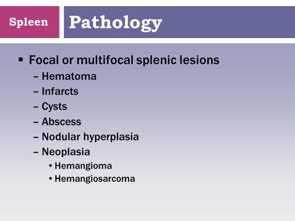 Spleen Lymphosarcoma
