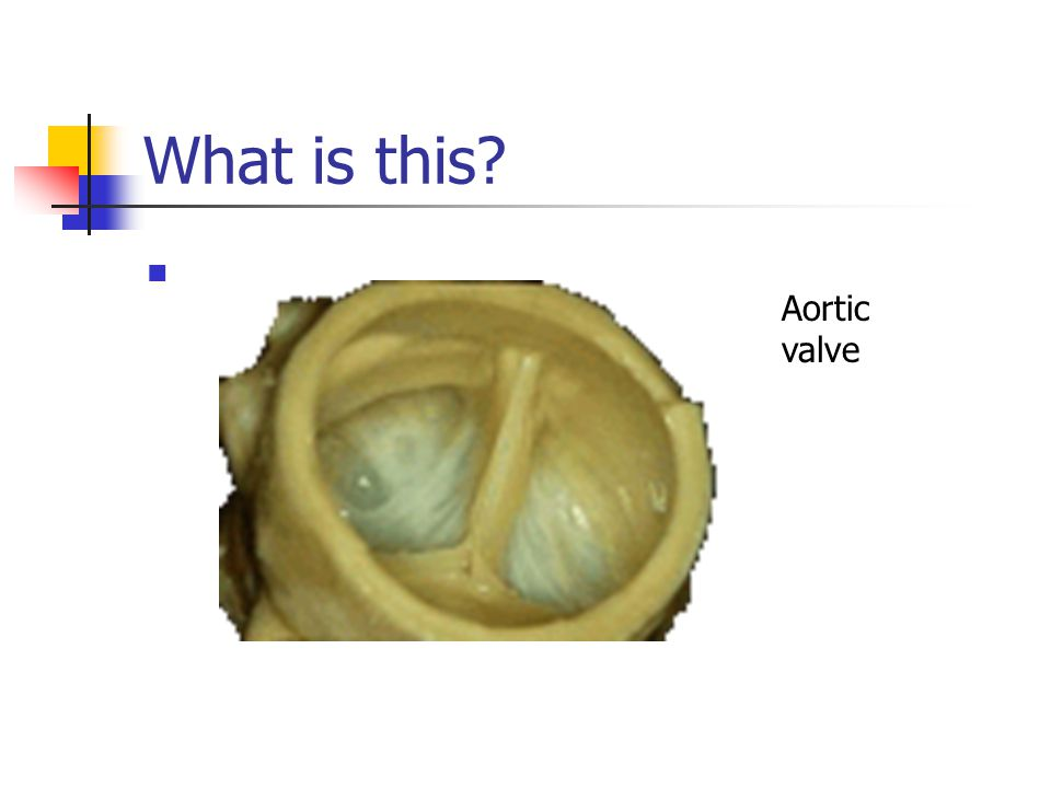 What is this? Aortic valve