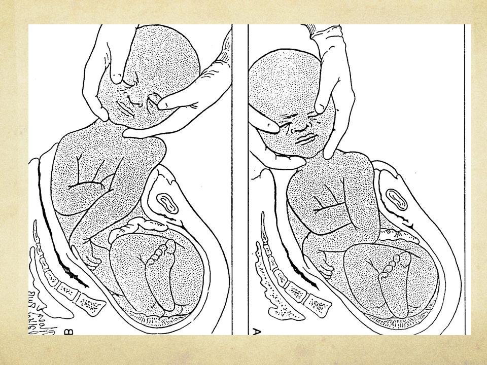 Cesarean Section Indications Failure to progress (Dystocia) Repeat (Failed VBAC) Fetal Distress Breech Presentation Placenta Previa Cord prolapse Abruption Diabetes Fetal Reasons (e.g.