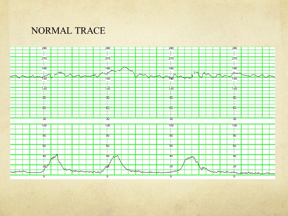NORMAL TRACE
