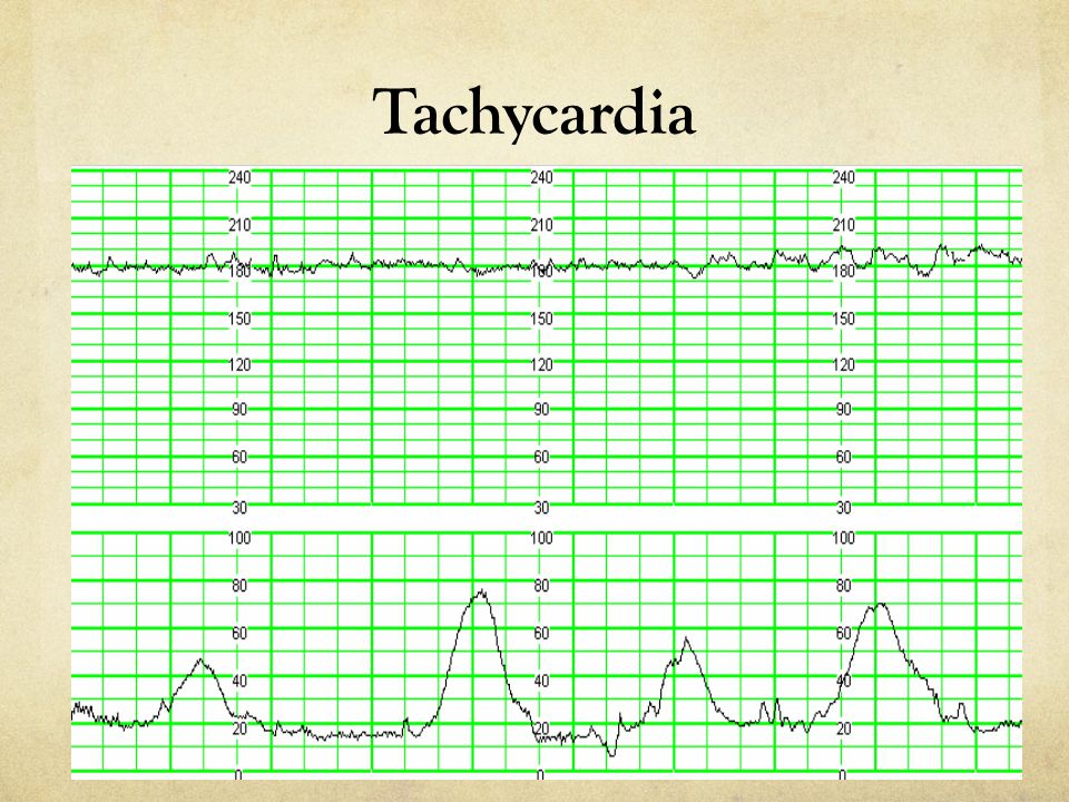 Characteristics or associated findings with late decelerations include all of the following except: a)They may be seen in patients with pre-eclampsia b)They may be associated with respiratory alkalosis c)They are associated with a decreased uteroplacental blood flow d)They often are accompanied by decreased PO 2 e)They usually are accompanied by an increased PCO 2