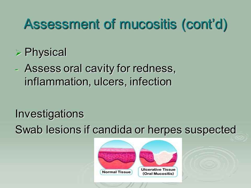 Assessment of mucositis (cont'd)  Physical - Assess oral cavity for redness, inflammation, ulcers, infection Investigations Swab lesions if candida o