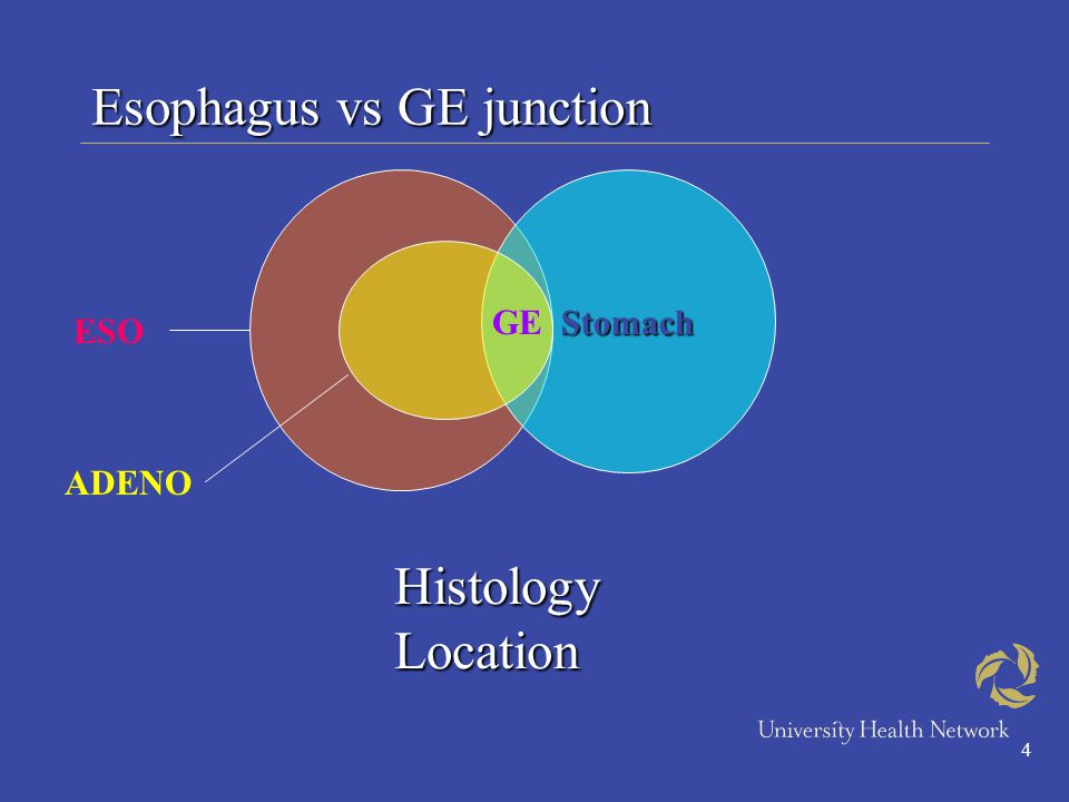 4 Esophagus vs GE junction Histology Location Stomach ESO ADENO GE