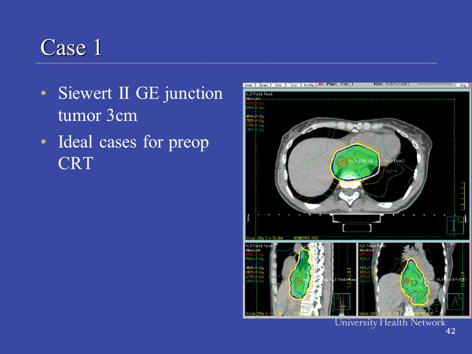 42 Siewert II GE junction tumor 3cm Ideal cases for preop CRT Case 1
