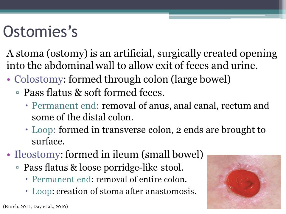 Ostomies's A stoma (ostomy) is an artificial, surgically created opening into the abdominal wall to allow exit of feces and urine. Colostomy: formed t