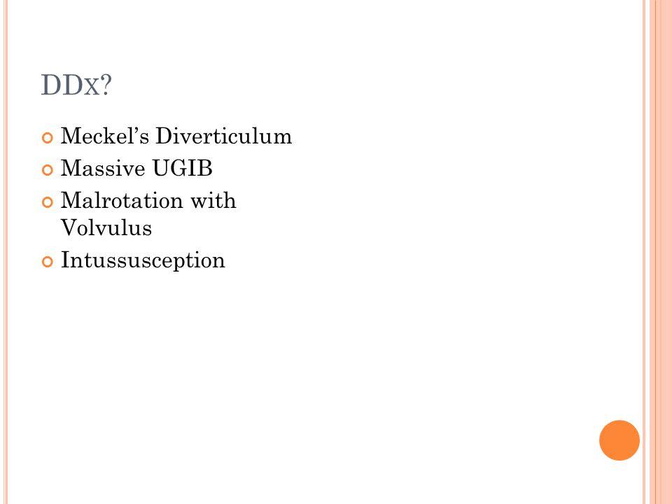 DD X ? Meckel's Diverticulum Massive UGIB Malrotation with Volvulus Intussusception