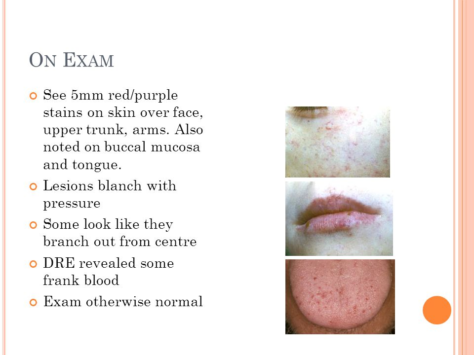 O N E XAM See 5mm red/purple stains on skin over face, upper trunk, arms. Also noted on buccal mucosa and tongue. Lesions blanch with pressure Some lo
