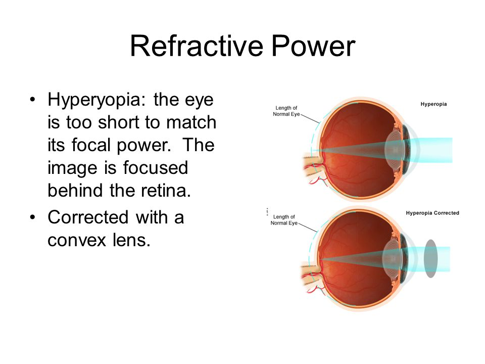 Refractive Power Hyperyopia: the eye is too short to match its focal power.