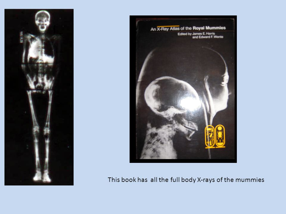 This book has all the full body X-rays of the mummies