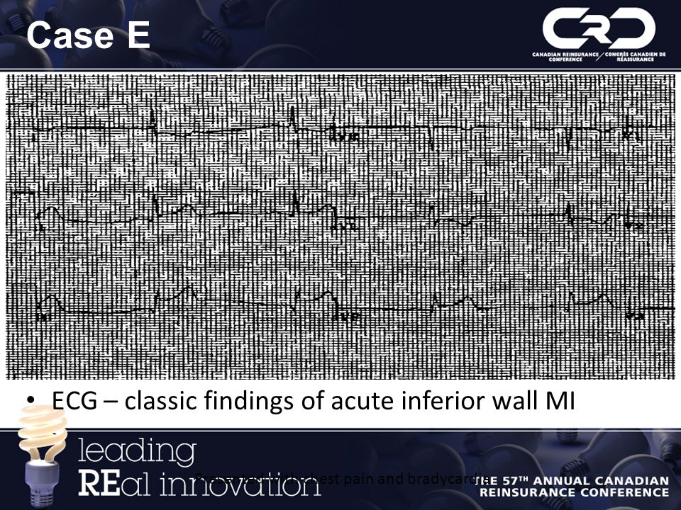 Case E ECG – classic findings of acute inferior wall MI Presented with chest pain and bradycardia