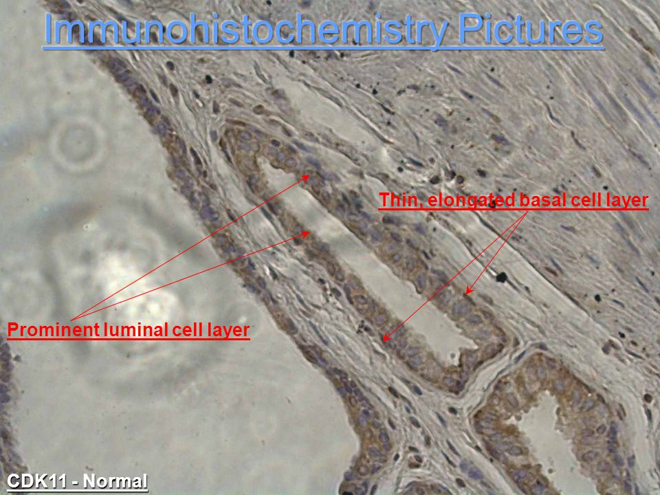 Thin, elongated basal cell layer Prominent luminal cell layer CDK11 - Normal
