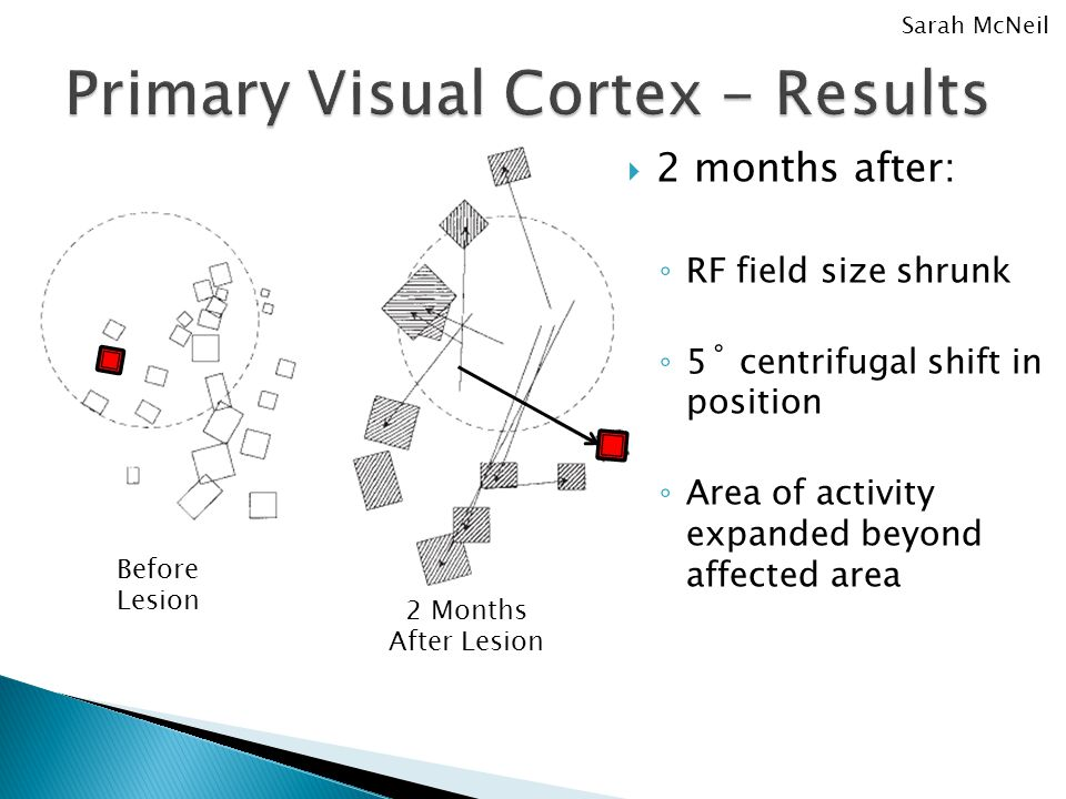  2 months after: ◦ RF field size shrunk ◦ 5˚ centrifugal shift in position ◦ Area of activity expanded beyond affected area Sarah McNeil Before Lesion 2 Months After Lesion