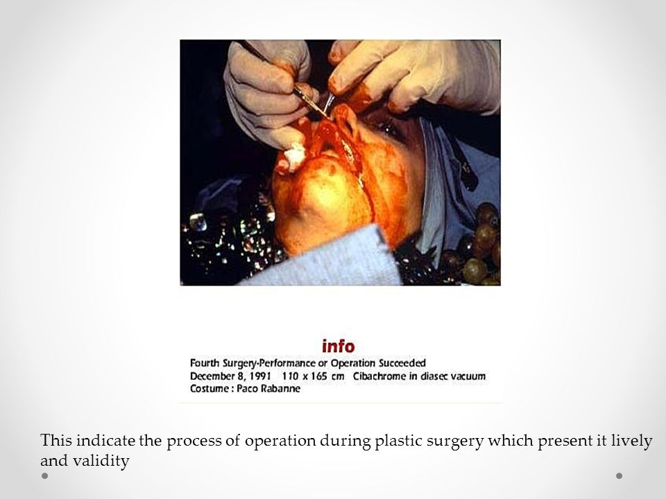 This indicate the process of operation during plastic surgery which present it lively and validity