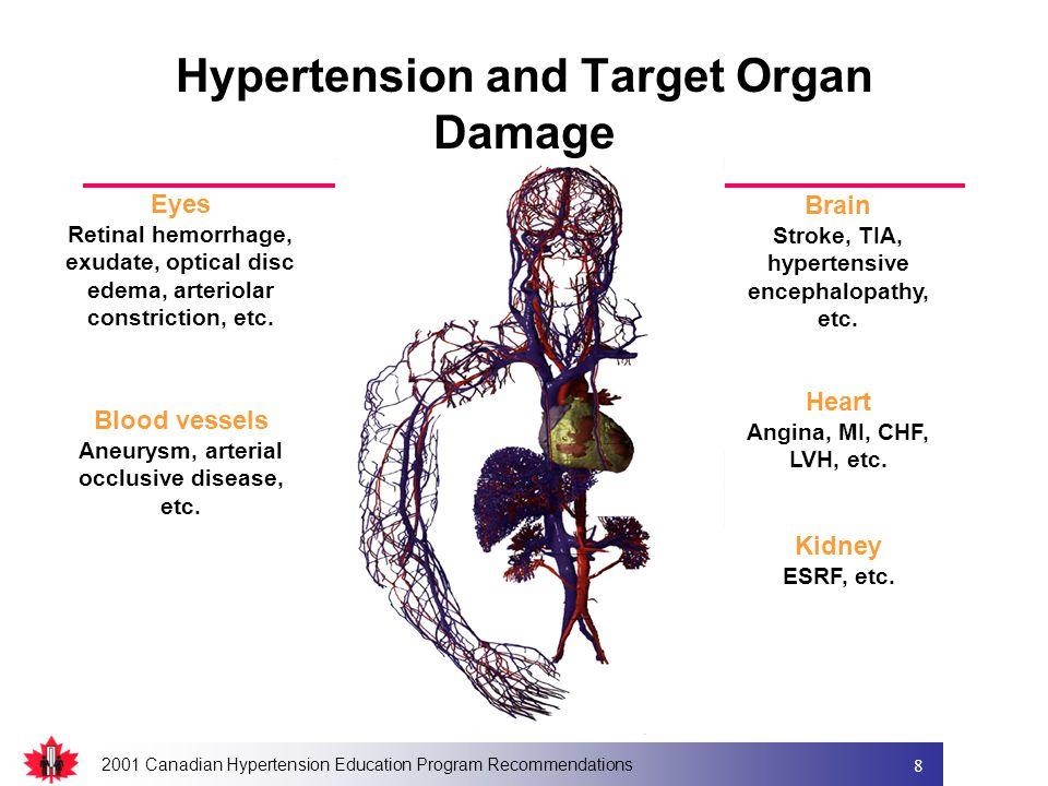 2001 Canadian Hypertension Education Program Recommendations 8 Brain Stroke, TIA, hypertensive encephalopathy, etc.
