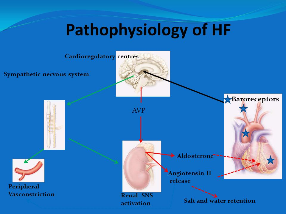 Pathophysiology of HF Baroreceptors Cardioregulatory centres AVP Aldosterone Angiotensin II release Peripheral Vasconstriction Sympathetic nervous system Renal SNS activation Salt and water retention
