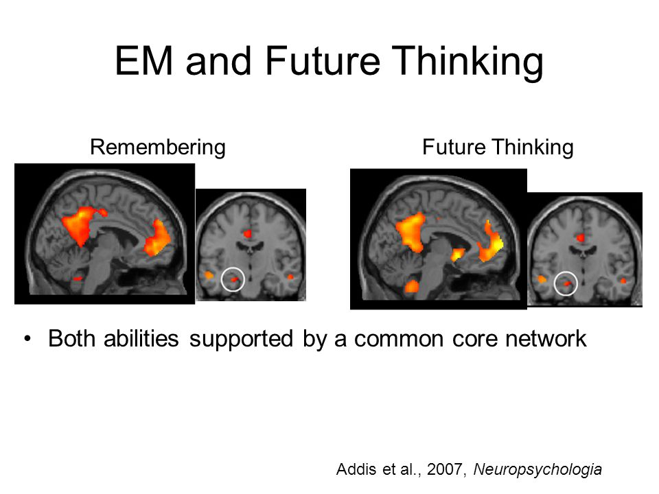 EM and Future Thinking Remembering Future Thinking Both abilities supported by a common core network Addis et al., 2007, Neuropsychologia