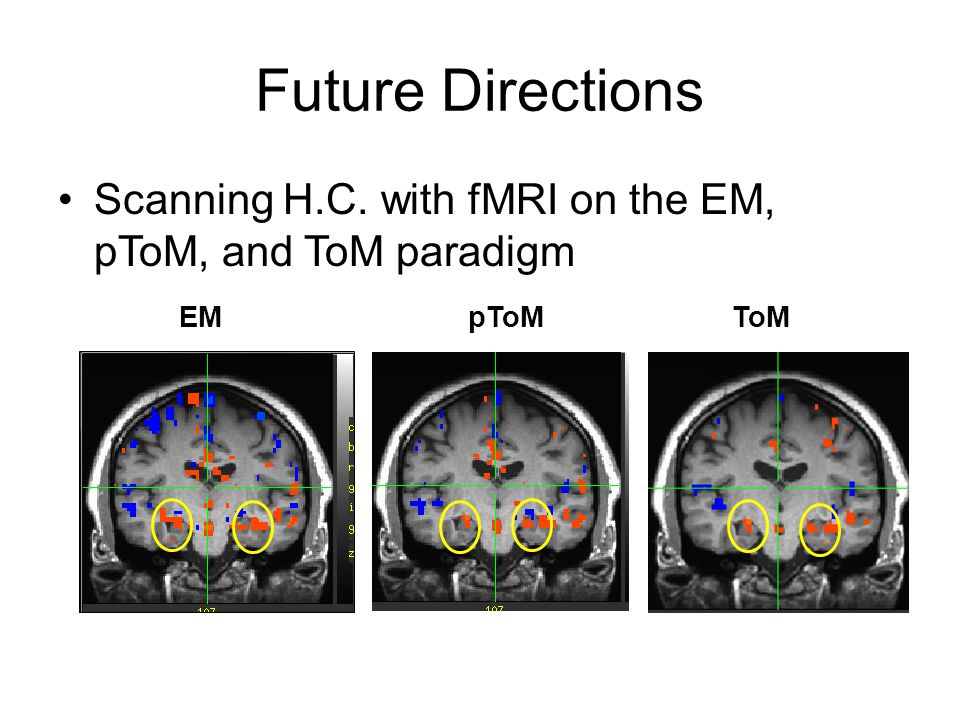 Future Directions Scanning H.C. with fMRI on the EM, pToM, and ToM paradigm EM pToM ToM