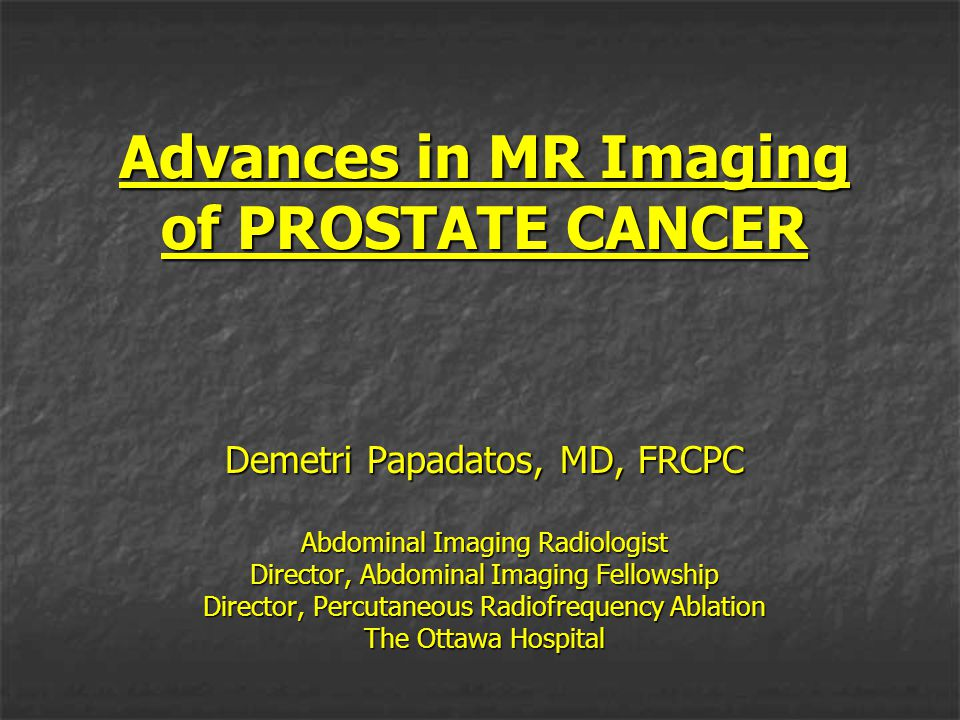 PROSTATE CANCER Most common malignancy of men in US Most common malignancy of men in US after skin cancer At autopsy, prostate cancer is found in At autopsy, prostate cancer is found in 30% of men at age 50 30% of men at age 50 almost 90% at age 90 almost 90% at age 90 About one in six men will be diagnosed with About one in six men will be diagnosed with prostate cancer during lifetime prostate cancer during lifetime However, only 1 / 34 will die of the disease However, only 1 / 34 will die of the disease