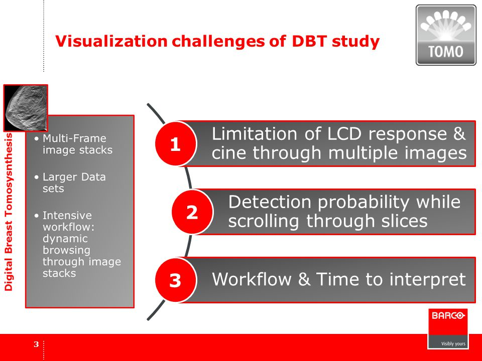 Visualization challenges of DBT study Limitation of LCD response & cine through multiple images 1 Detection probability while scrolling through slices 2 Workflow & Time to interpret 3 3