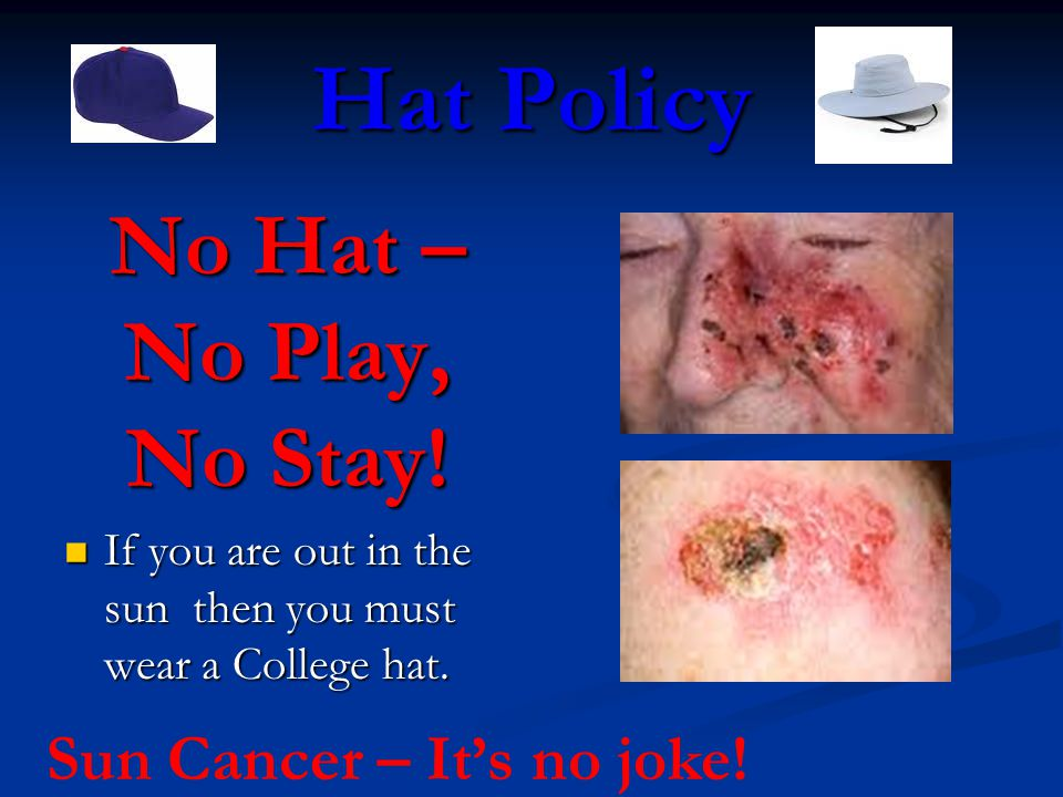 Hat Policy No Hat – No Play, No Stay. If you are out in the sun then you must wear a College hat.