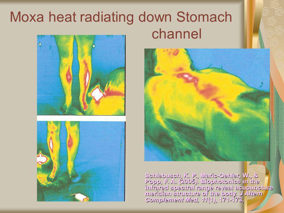 Moxa heat radiating down Stomach channel Schlebusch, K.