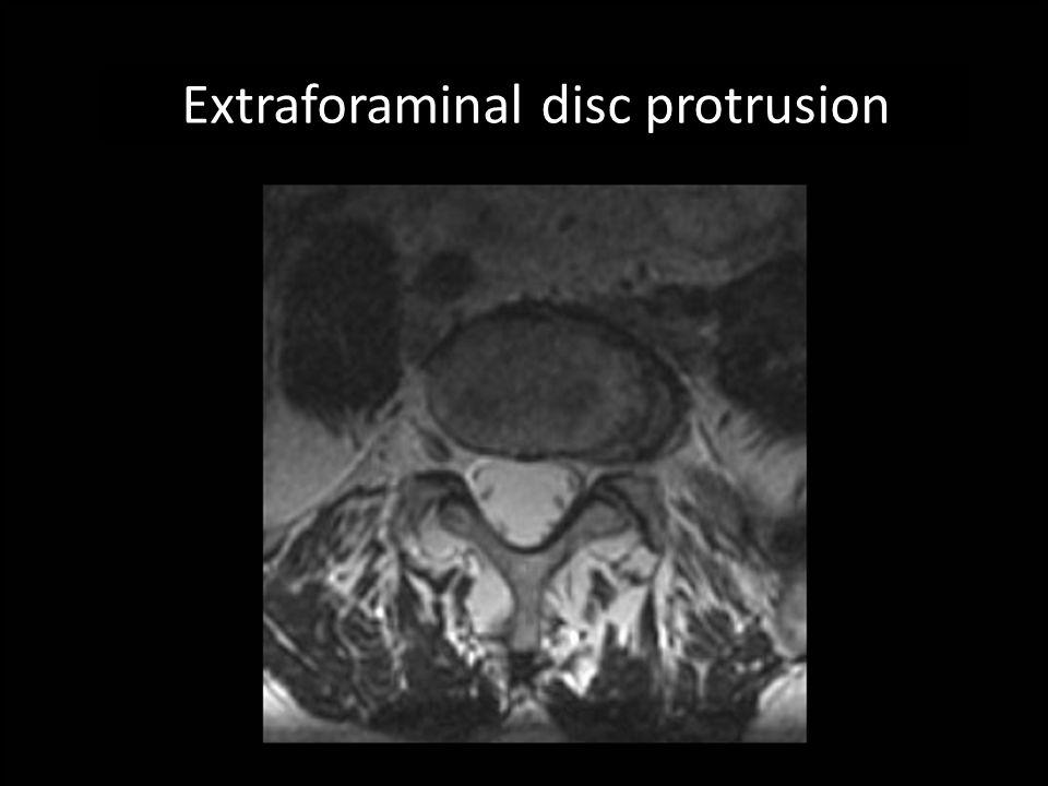 Extraforaminal disc protrusion