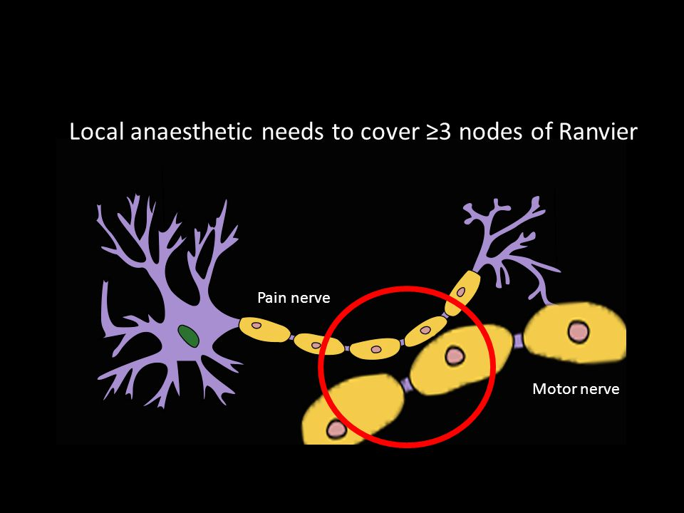 Pain nerve Motor nerve Local anaesthetic needs to cover ≥3 nodes of Ranvier