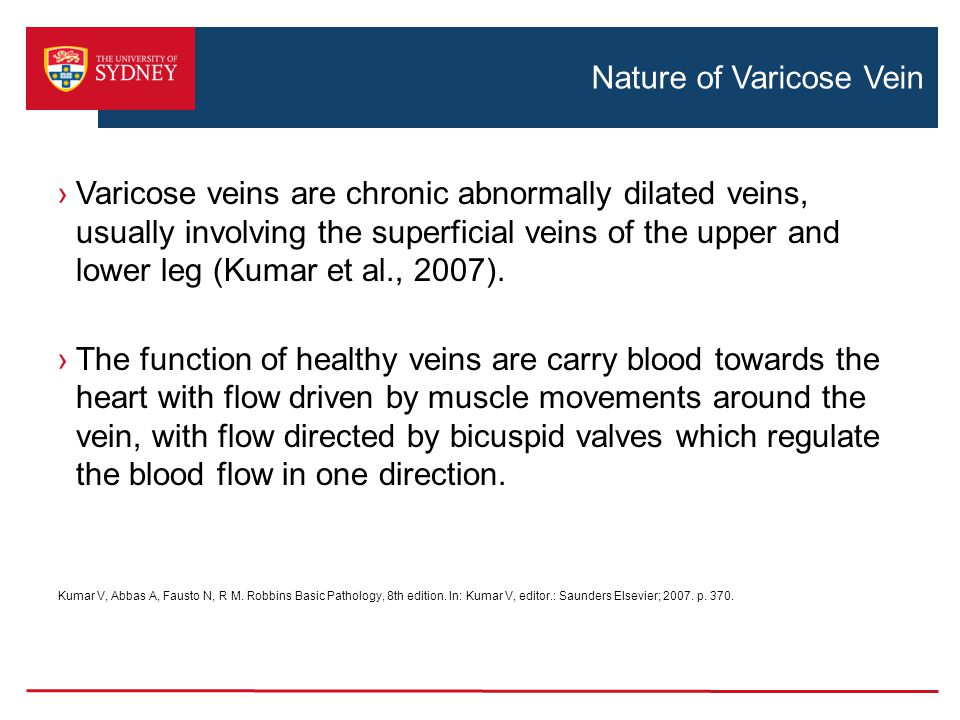 Nature of Varicose Vein ›Varicose veins are chronic abnormally dilated veins, usually involving the superficial veins of the upper and lower leg (Kuma