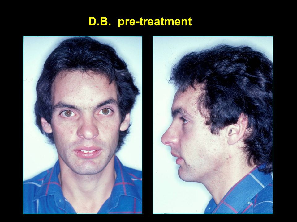 D.B. pre-treatment