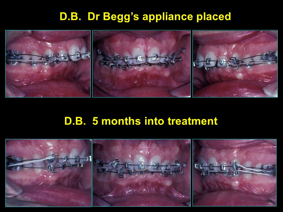 D.B. Dr Begg's appliance placed D.B. 5 months into treatment