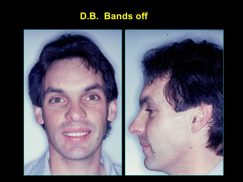 D.B. Bands off