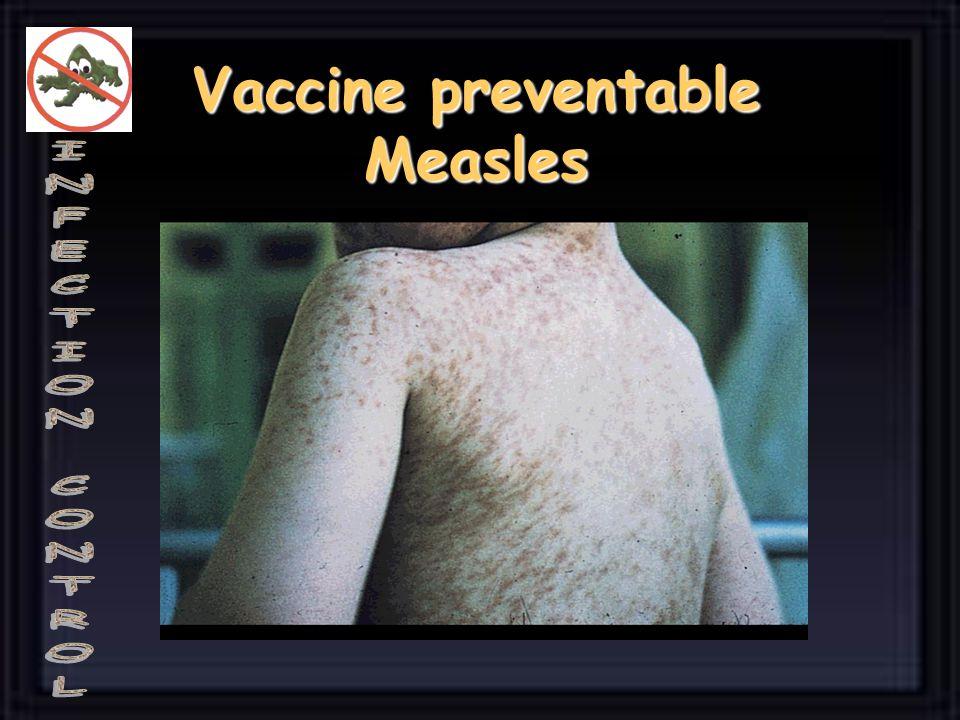Many are not……. Rotavirus Rotavirus Adenovirus Adenovirus Norwalk virus Norwalk virus Rhinovirus Rhinovirus Parainfluenanae viruses Parainfluenanae vi