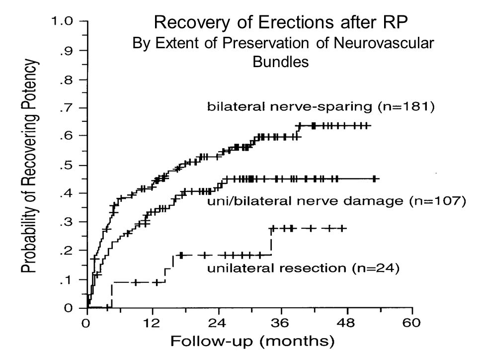 Recovery of Erections after RP By Extent of Preservation of Neurovascular Bundles